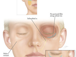 Filler Injection Techniques for Cheekbone Augmentation (Video)