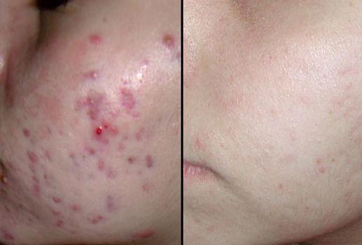acne treatments vienna
