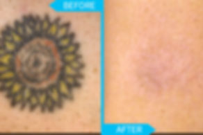 laser tattoo removal vienna