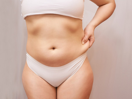 Affordable Liposuction in Tysons Corner