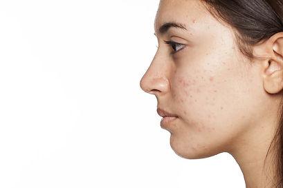 facials procedure Vienna