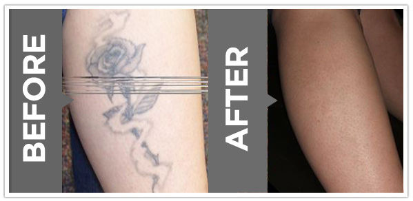 laser tattoo removal vienna