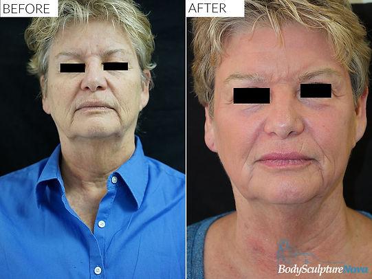 laser skin rejuvenation vienna