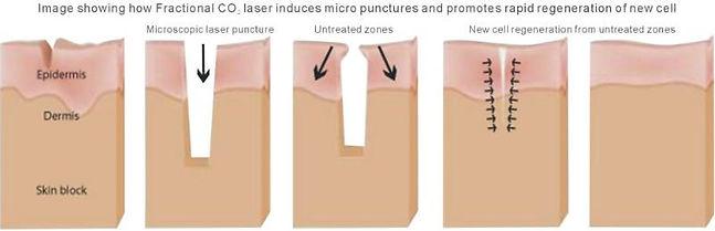 laser skin resurfacing vienna