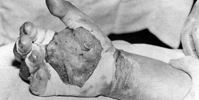 Louis Slotin's hands showing radiation burns