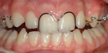 Wetherby Orthodontics | Removable