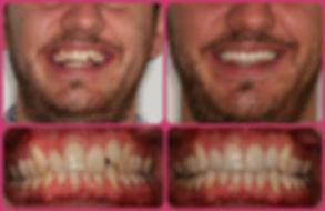 Wetherby Orthodontics | Invisalign
