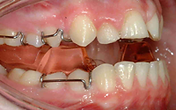 Wetherby Orthodontics | Functional