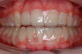 Wetherby Orthodontics | Retainers