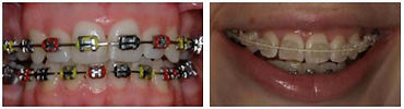 Wetherby Orthodontics | Fixed