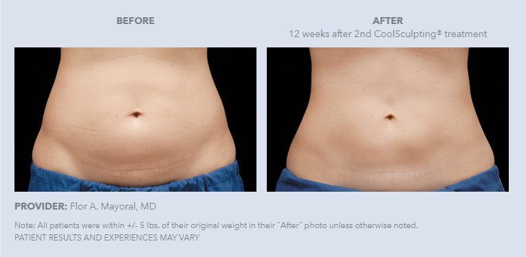 4-coolSculpting.PNG
