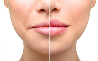 What Are the Benefits of Lip Augmentation?