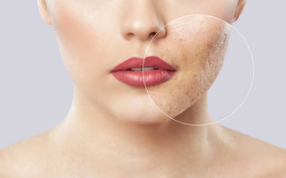 What's the Best Treatment for Acne Scars?