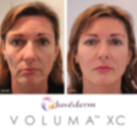 JUVEDERM VOLUMA ADDED TO SUNK IN CHEEKS