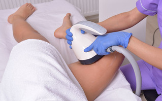 What Is CoolSculpting and Does It Really Work?