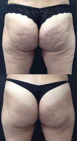 qwo-treatment-before-and-after.jpg