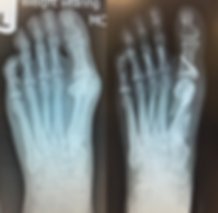 Bunion correction with scarf osteotomy