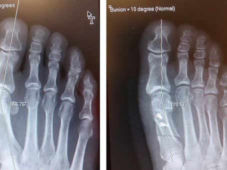 """Does """"bunion surgery"""" work?"""
