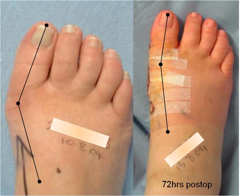 Rapid recovery bunion surgery