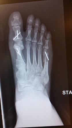 Postop x-ray