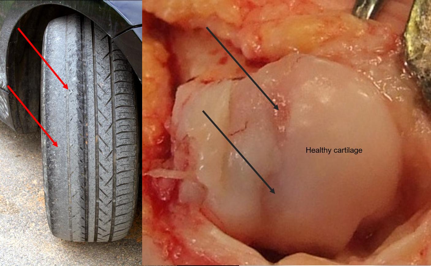 Bunions and big toe joint arthritis