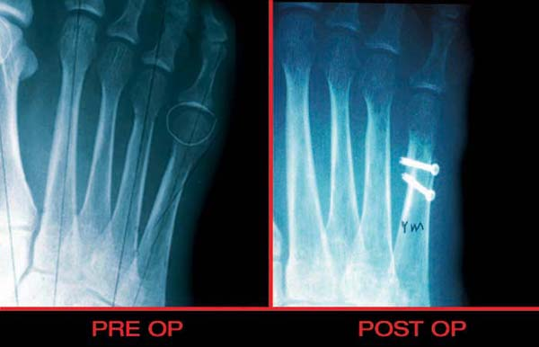 Tailors oblique osteotomy