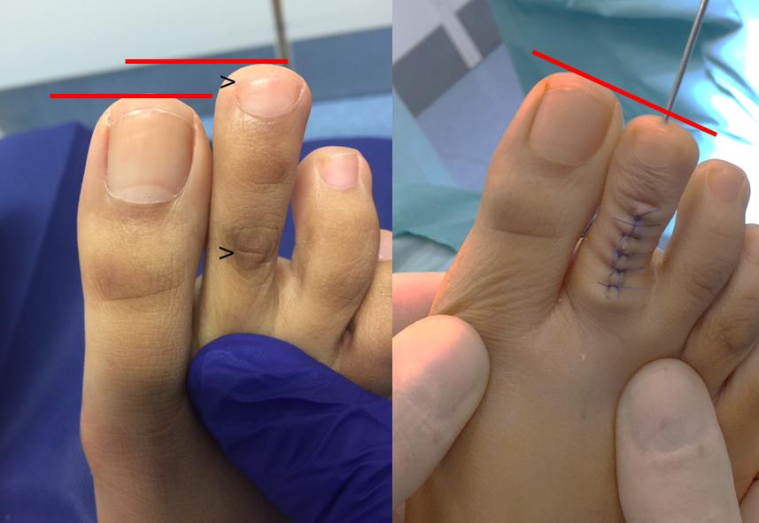 Toe shortening
