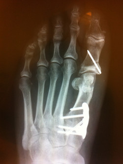 Severe bunion corrected with Lapidus