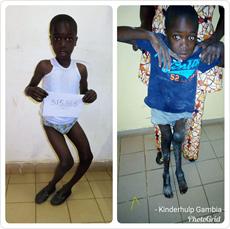 Fotos van voor en na de operatie