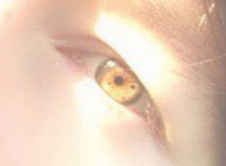 My Amber Eyes - Are They Real or Fake?