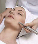 Microneedling | Skin Needling | Brighton | Sussex