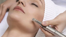 Microinfusion! Microneedling with a difference!!