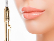 Introducing the Hyaluron Pen! Dermal Fillers with a difference!