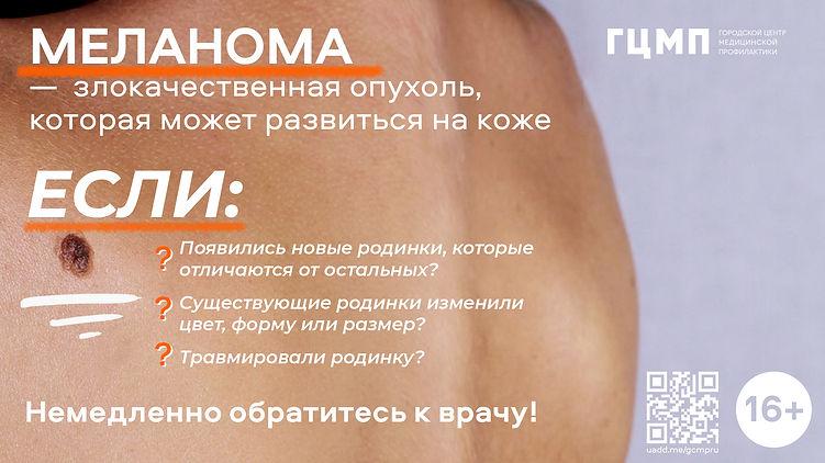 меланома.jpg