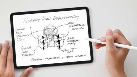 Hand-drawn Surgical Diagram