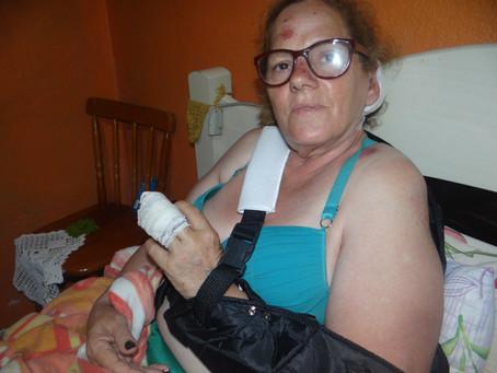 Passa bem mulher que foi atropelada enquanto fazia caminhada
