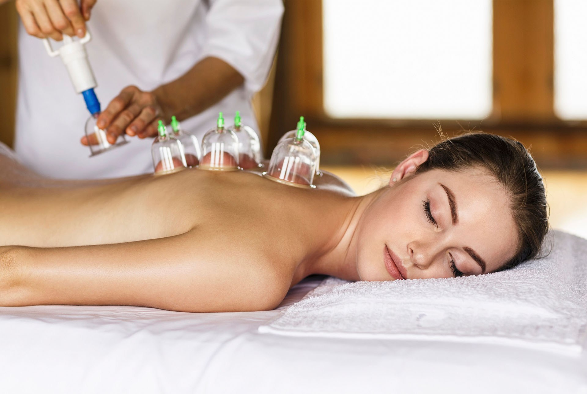 med-spa-cupping
