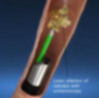 laser ureteroscopy.jpg