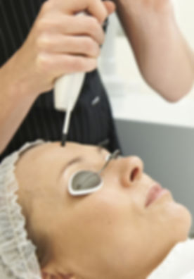 Beautician Carrying Out Q Switch Laser Treatment.jpg