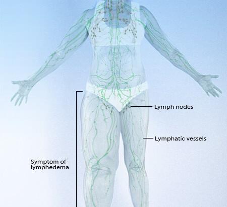 Leczenie przewlekłego obrzęku limfatycznego kończyn