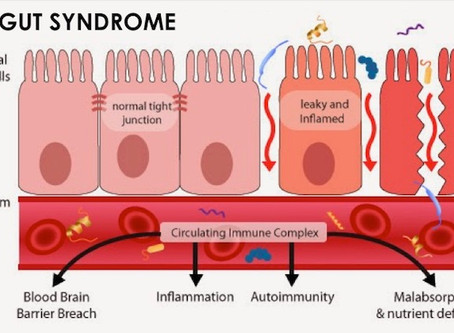 LEAKY GUT SYNDROME and how to handle it.