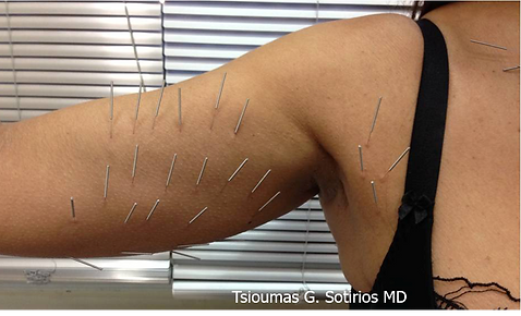 Needle Shaping on Upper and Under Arm