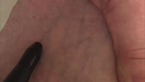 6 - Spider veins treatment.mp4