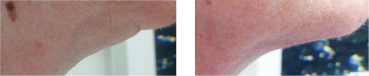 颈部抗衰-1.png