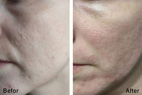 Carbomax, before and after treatments