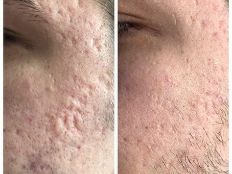 Acne scars on the face and back: