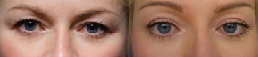 眼部-前后2.png