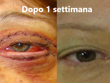 Non-surgical blepharoplasty and no scalpel: plasma technology