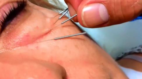 7 - Eyelid bags treatment.mp4