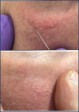 OFF Demonstration of treatment on cheeks